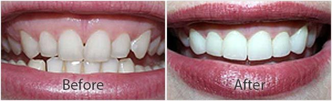 Teeth Whitening before and after 01