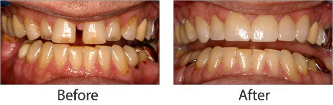 Dental Impalants before and after 02