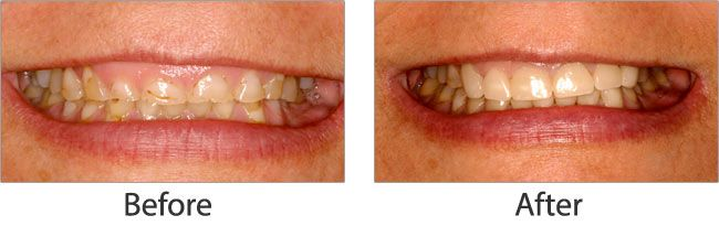 Cosmetic dentistry before and after 06