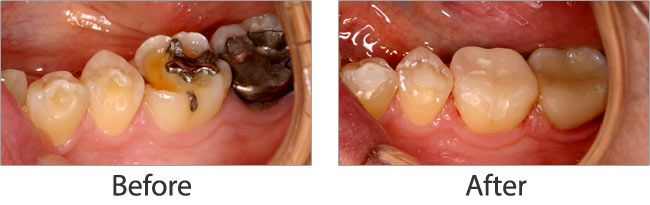Mercury Safe Dentistry before and after 02