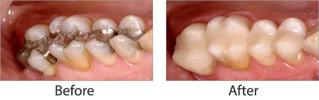Mercury Safe Dentistry before and after 03
