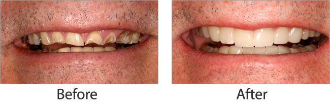 Cosmetic dentistry before and after 07