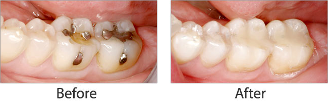 Mercury Safe Dentistry before and after 04
