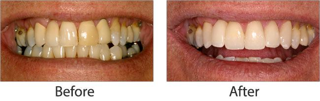 Teeth Whitening before and after 03