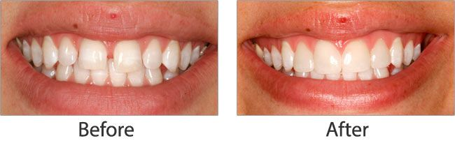 Teeth Whitening before and after 04