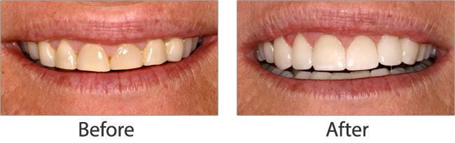 Teeth Whitening before and after 05