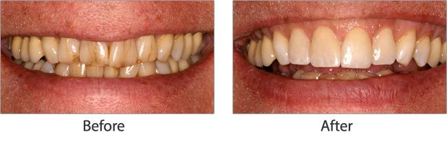 cosmetic dentistry before and after 01