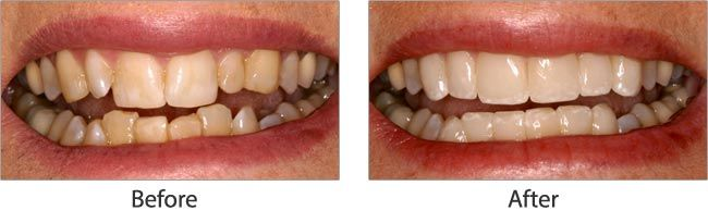 cosmetic dentistry before and after 02