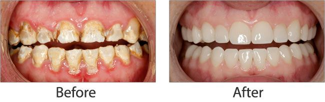 cosmetic dentistry before and after 03