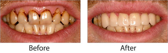 cosmetic dentistry before and after 04