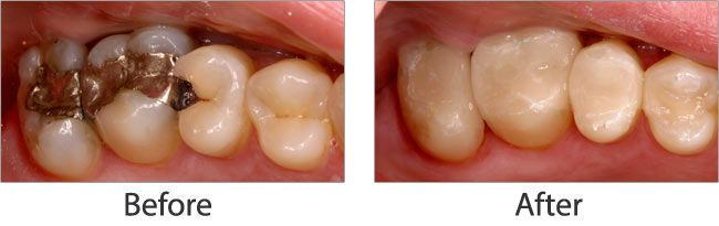Mercury Safe Dentistry before and after 01