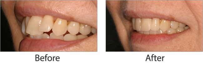 Cosmetic dentistry before and after 05