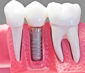 Best Dental Implants provider in Lawrence, KS area
