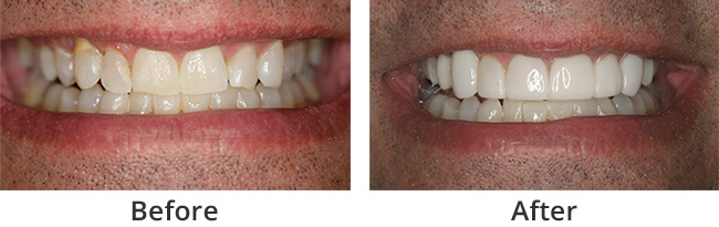 Smile Rejuvenation  before and after 01